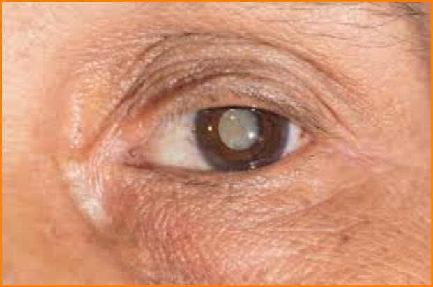 Eyes stricken with cataract